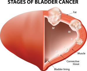 stages of bladder ca