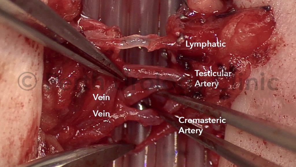 Block nerve sperm cord surgery pain